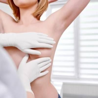 AUTOEXPLORACION  MAMARIA  ¿ COMO PREVENIR EL CANCER DE MAMA?
